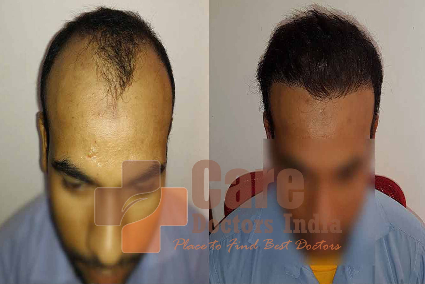 Hair Transplant Cost/Price in India   Best Hair Transplant